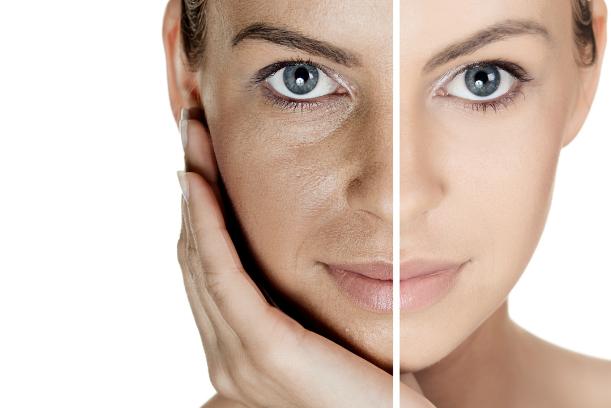 ¿Cómo hidratar la piel grasa y obtener el cutis de tus sueños?
