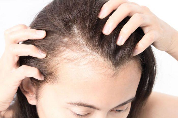 Perdita di capelli improvvisa Lo stress è la causa scaled