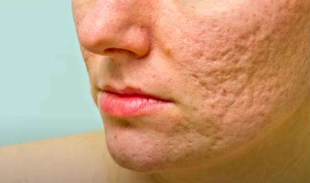 5 Maneras de Ocultar las Cicatrices del Acné