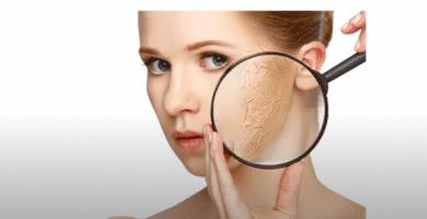 piel seca